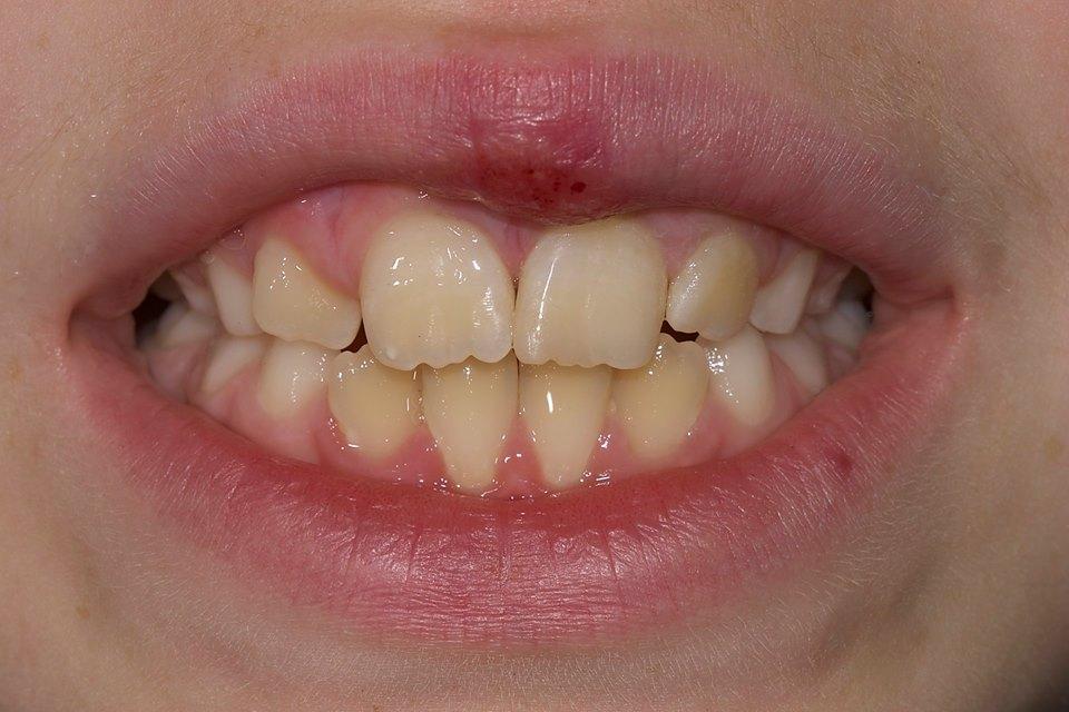 Il restauro conservativo estetico del dente permette di giungere ad un risultato molto soddisfacente, rispettando anche le naturali caratteristiche di inclinazione del dente.